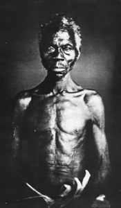 Faces Of Slavery: White Sciences Attempt To Prove That Africans Were Biologically Inferior